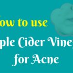 Apple Cider Vinegar (ACV) for Acne – curing and scar removal