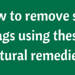 Natural DIY methods to remove skin tags!