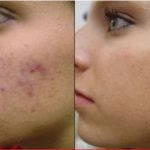 How to Get Rid of Scars on Face? Top 20 Home Remedies for Scars