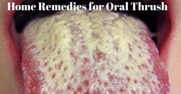 Top 12 Home Remedies for Oral Thrush – How to Get Rid of Oral Thrush?
