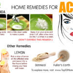 10 Remedies to Get Rid of Severe Acne