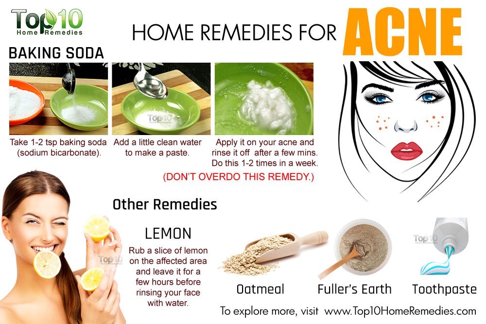 how to get rid of acne on body home remedy