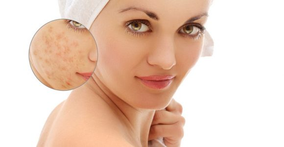 How to Get Rid of Pimples OverNight (15 Ways)