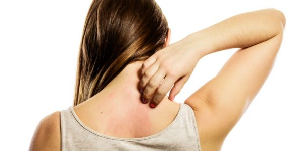Effective Home Remedies to Get Rid of Scabies Fast