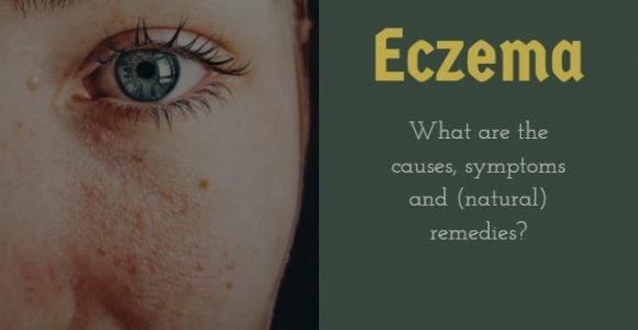 Eczema: What are the causes, symptoms and (natural) remedies?