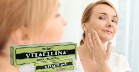 ▷¿Para Qué Sirve la Vitacilina en Crema? [[Bebés, Acné, Estrías y más]]