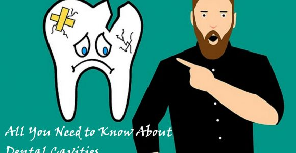 All You Need to Know About Dental Cavities