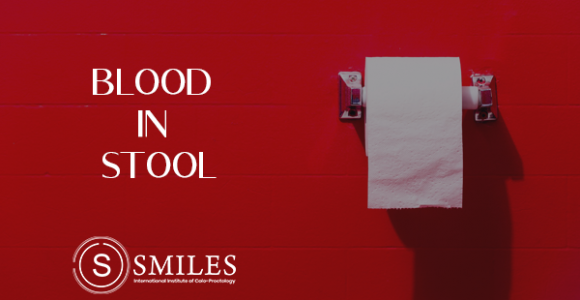 Why is there blood in your stool? – SMILES, Bangalore