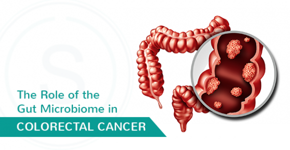 How does Gut Microbiome affect Colorectal Cancer – SMILES Bangalore