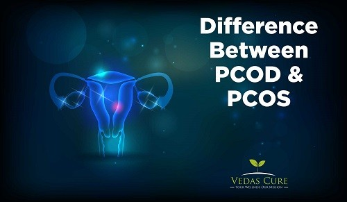 The PCOD and PCOS different: PCOS Exercise weight loss