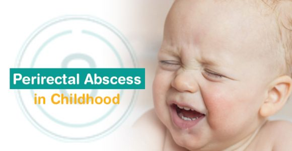 Perirectal abscess in Childhood | Best Treatment for Perirectal abscess