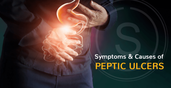 Symptoms & Causes of Peptic Ulcers | Best Treatment of Peptic Ulcers