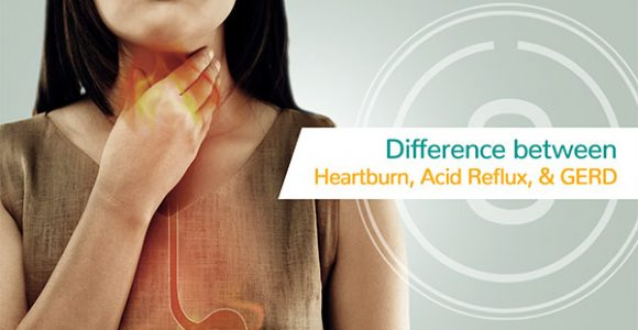 Difference Between Heartburn, Acid Reflux, and GERD | SMILES