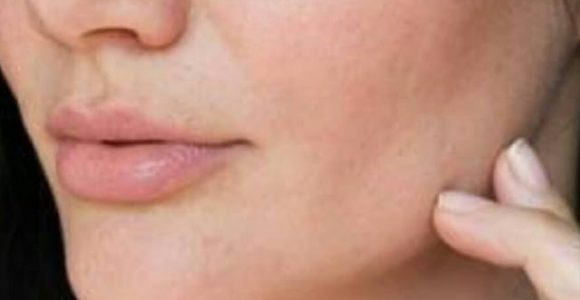 Dehydrated skin explained by dermatologist