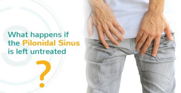 What happens if the Pilonidal Sinus is left untreated? | SMILES