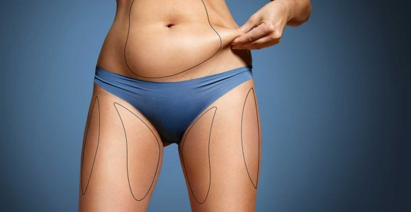 Liposuction vs. Non-Surgical Fat Reduction: Pros & Cons
