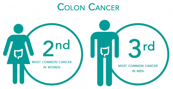 6 ways to reduce the risk of Colon Cancer – Colon Cancer Treatment