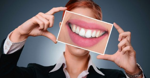 Teeth Straightening with Damon Braces | GetSetHappy
