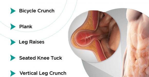 Easy Exercises to prevent Hernia | Doctors for Hernia Treatment in Bangalore