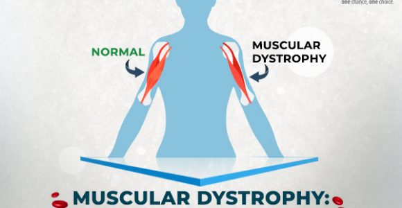 Muscular Dystrophy: Can Stem Cell Treatment Help?