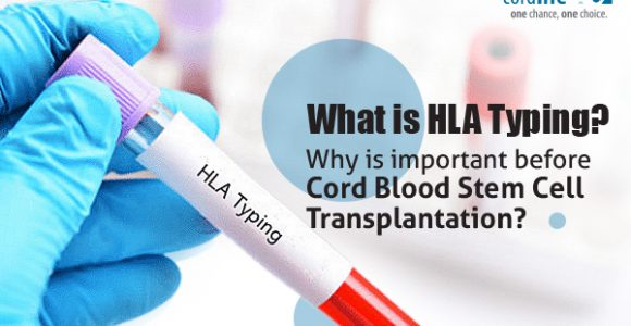 What is HLA Typing? Why is Important Before Cord Blood Stem Cell Transplantation?